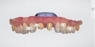 escaner-intraoral-boca-clinica-dental-marin-garcia
