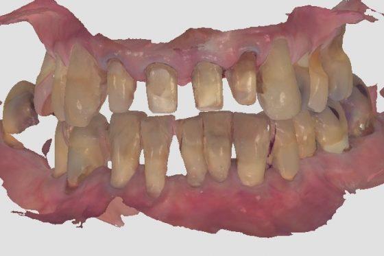 innovación tecnológica en la clínica dental en Barcelona Marín García