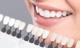 carillas dentales en Barcelona