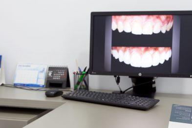 para qué aplicamos el diseño de sonrisas en la clínica dental en Barcelona Marín García