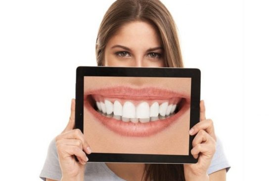 diseño de sonrisas en Barcelona