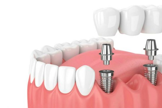 implantes de máxima calidad en Barcelona en la Clínica Dental Marín García