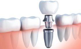 implantología oral en Barcelona