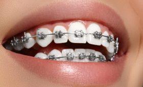 ortodoncia en Barcelona