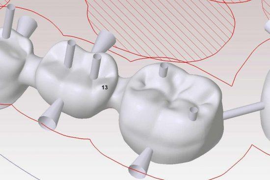 cómo mejorar tu sonrisa con la tecnología CAD /CAM en la clínica dental en Barcelona Marín García