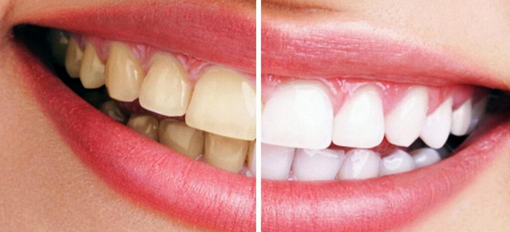 en que consiste el blanqueamiento dental