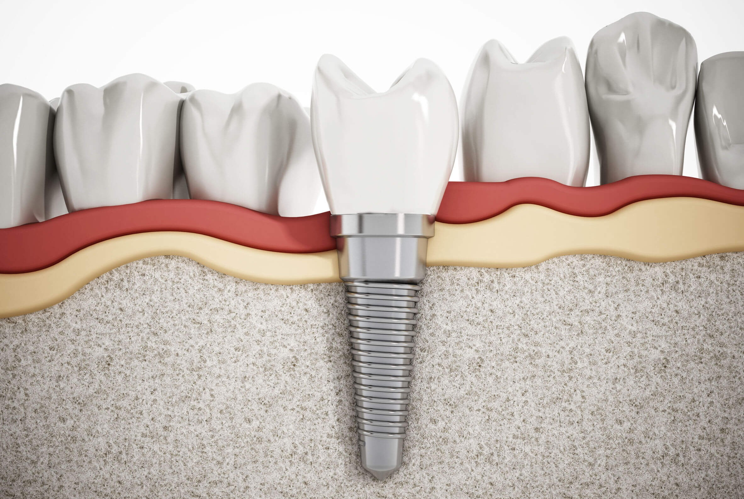 por qué optar por las prótesis fijas en la clínica dental en Barcelona Marín García
