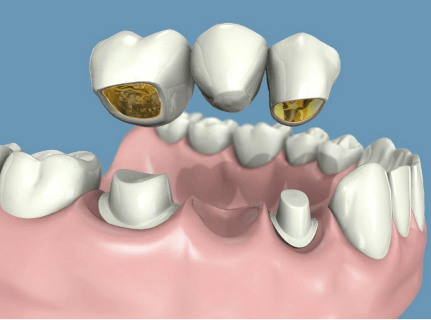 ventajas de ponerte prótesis fijas en la clínica dental en Barcelona Marín García